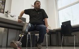 Dall'Austria arriva la protesi che riproduce sensazioni tattili (VIDEO)