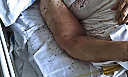 """Formiche in ospedale a Napoli: """"Cacciare i responsabili"""""""