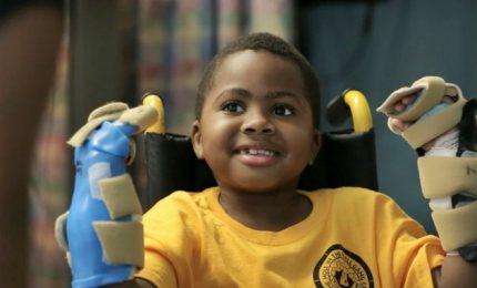 Storico successo primo trapianto di mani su un bambino di 10 anni