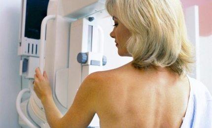 Tumori, al Sud solo una donna su cinque fa la mammografia