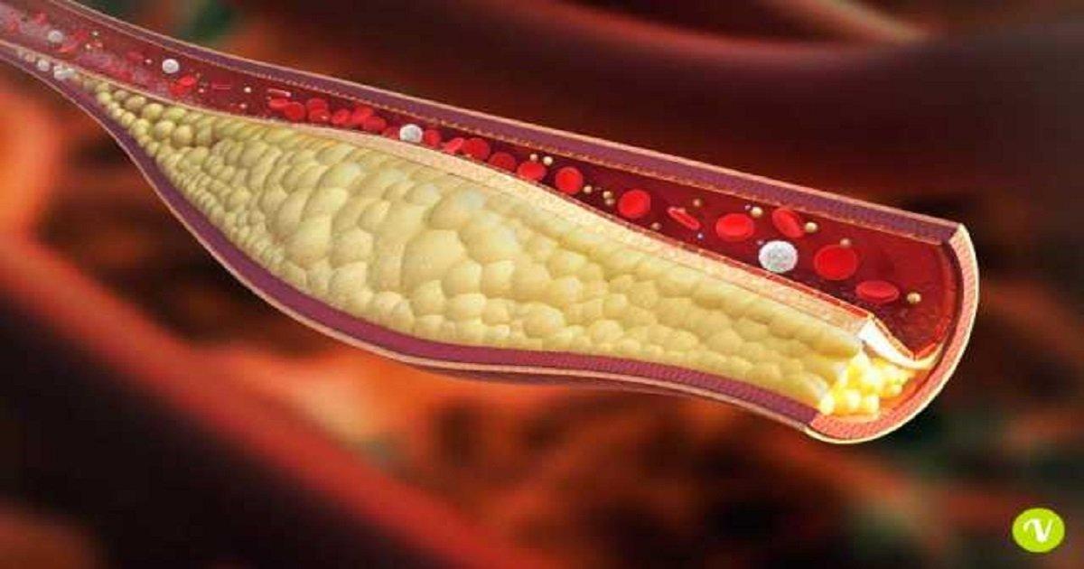 Addio al colesterolo alto, una iniezione lo riduce fino al 70%