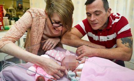 Piccola nasce con il cuore fuori da corpo, è viva dopo tre delicatissime operazioni chirurgiche