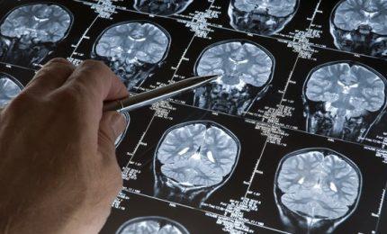 Rimanere attivi, ecco il segreto per stimolare la neurogenesi