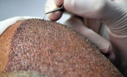 Trapianto capelli, occhio a offerte low cost su web