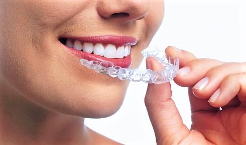 Denti, addio apparecchi: boom per gli aligner trasparenti dei Vip