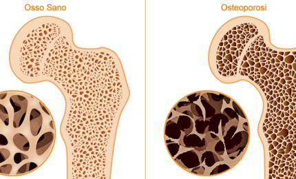 Quasi 5 milioni di italiani con osteoporosi, il consiglio degli esperti