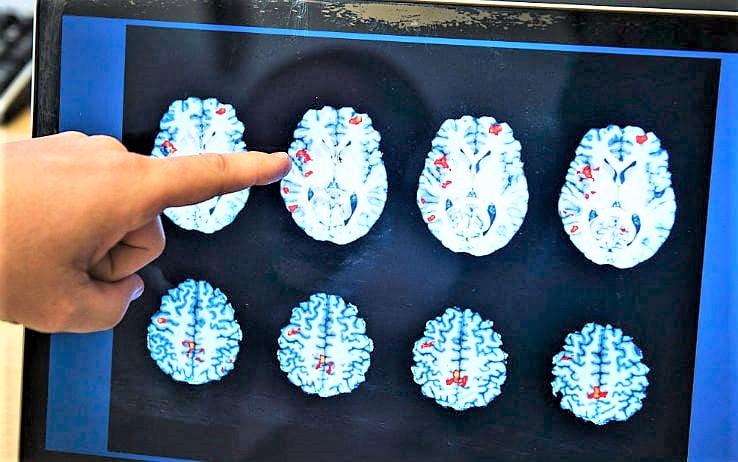 Il cervello va 'in tilt' se gli vengono offerte più di 15 opzioni