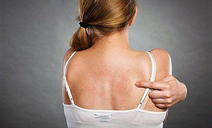 Dermatite atopica, epidemiologia e impatto socio-economico