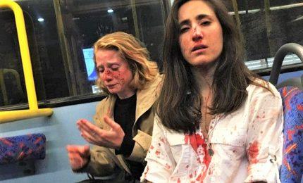 Melania e Chris, coppia di lesbiche aggredita su un bus a Londra
