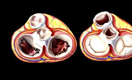 Malattie delle valvole cardiache: 95% degli over60 non le conosce