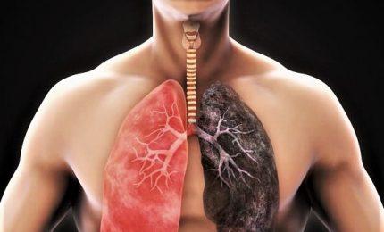 Fumo e tumore al polmone, rischio malattia non è uguale per tutti