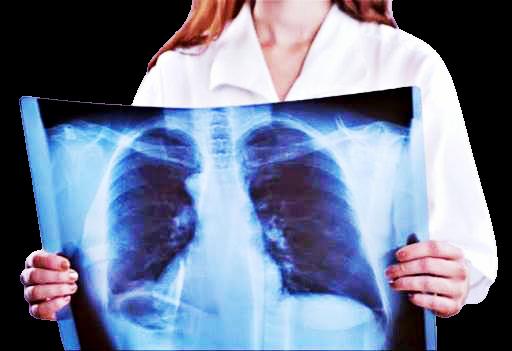 Con screening cancro polmone riduzione mortalità del 35%