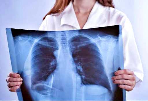 """Tumori, polmoni """"guariscono"""" dopo aver smesso di fumare"""