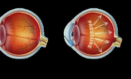 """Glaucoma nemico silenziso che """"ruba"""" la vista"""