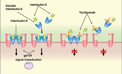 Coronavirus, dal Tocilizumab risultati importanti