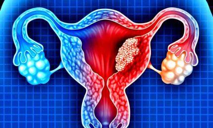 Focus cancro ovarico, nuove terapie per tumori