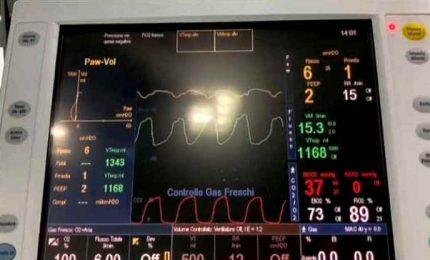 Breath4U, il ventilatore meccanico economico contro il Covid-19
