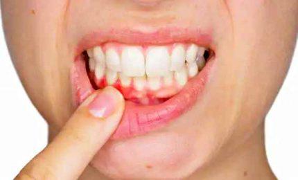 Ansia da smartworking e Covid peggiorano la salute di denti e gengive