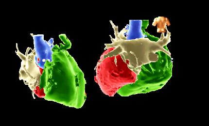 Aritmie cardiache, il mappaggio cardiaco tridimensionale