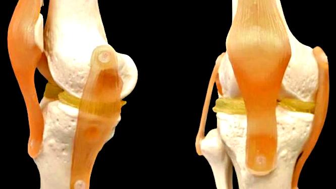 Idrogel per ripristinare cartilagine ginocchio danneggiata