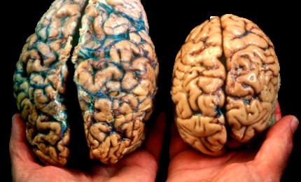 Come il cervello genera aspettative sul mondo