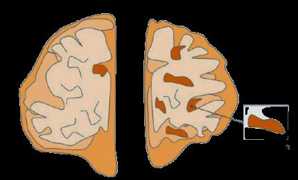 Alzheimer, Covid può accelerare i sintomi della demenza
