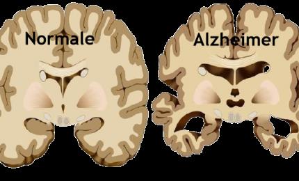 Alzheimer: proteina protegge nucleo cellulare da malformazioni